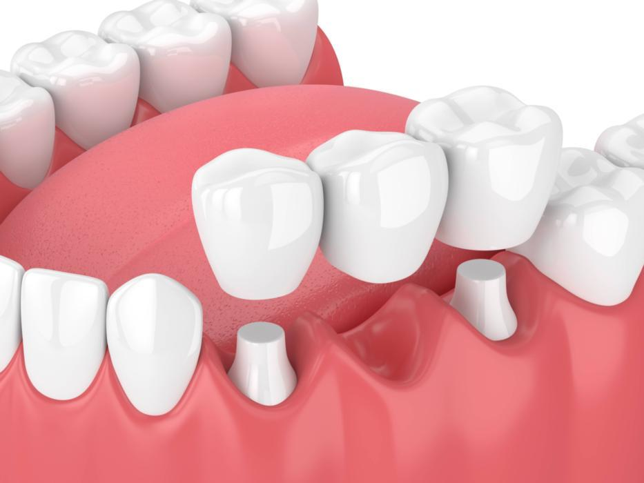 3d image of a dental bridge and crowns houston tx