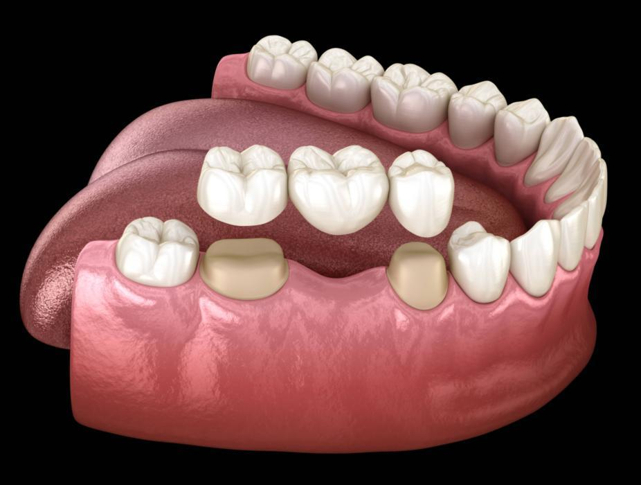 3d image of a dental bridge houston tx