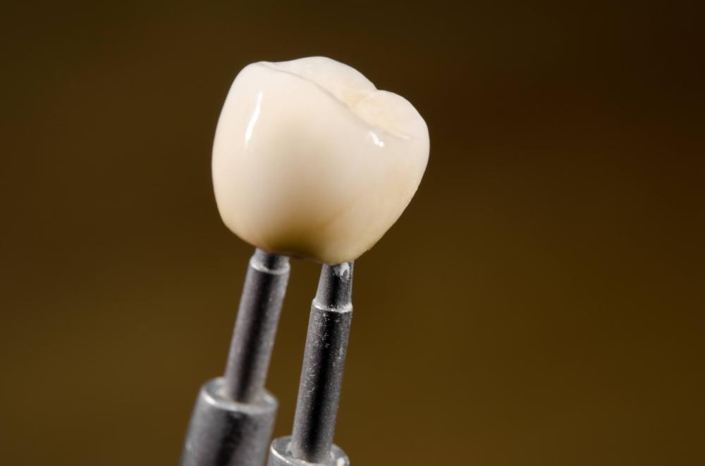 image of a newly molded dental crown houston tx