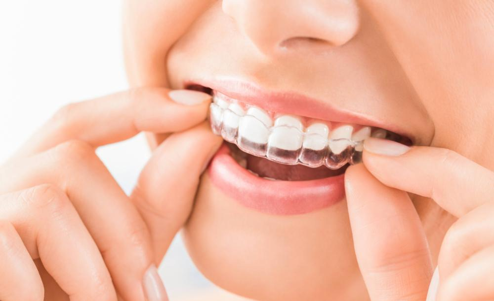 image of invisalign clear braces | Houston TX