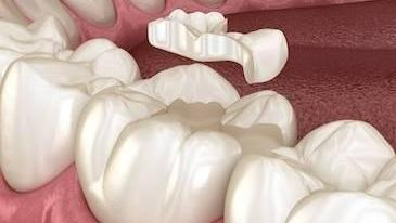 dental crown | memorial tx | girish bharwani dds