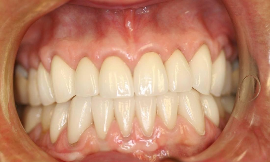 porcelain veneers | memorial tx | gb dental